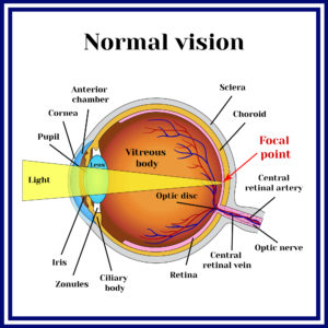 Normal Visual System | What Are Refractive Errors | Whitten Laser Eye