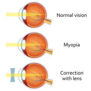 Myopia is Nearsighted Vision Corrected with LASIK