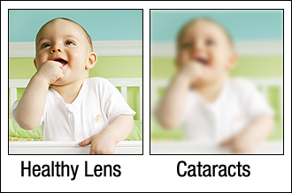 healthy-lens-cataractsjpg